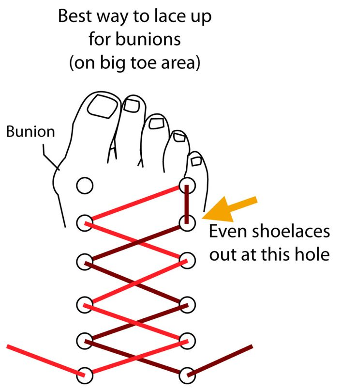 Tip: Best Way to Lace Up Shoes to Ease on Bunions  Here's a great way to ease the pressure from your bunion. In this image below you can see that for your right shoe, you should skip the top left lace hole in order to ease the pressure on a bunion that you may have on your right feet.