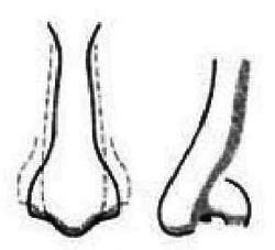 Naso - lungo