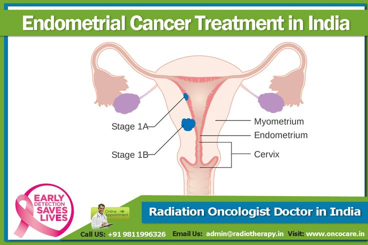 #Endometrial #Cancer #Treatment in #India, #Top #Endometrial #Cancer #Treatment in #India, #Best #Endometrial #Cancer #Treatment in #India, #EndometrialCancerTreatment #CancerTreatment #Doctor for #Cancer #Endometrial #cancer develops in the lining of #uterus. Uterus is a hollow organ present in the female body to which placenta attaches during pregnancy. The lining of uterus is constantly regenerating till the menopause is achieved. Call Us: +91 9811996326  E-mail: admin@radiotherapy.in