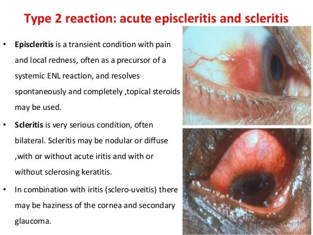 episcleritis vs scleritis - Google Search | Vasculitis ...