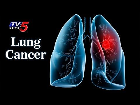 Causes, Symptoms And Treatments For Lung Cancer | Omega Hospitals | Health File | TV5 News - WATCH VIDEO HERE -> http://bestcancer.solutions/causes-symptoms-and-treatments-for-lung-cancer-omega-hospitals-health-file-tv5-news-2    *** signs of lung cancer ***   For More Updates ► TV5 News Live ► Subscribe to TV5 News Channel: ►  Download TV5 Android App: ►Our Website : ► Like us on Facebook: ► Follow us on Twitter: ► Circle us on TV5 News Channel G+: ► Follow
