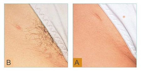 Tips for Laser Hair Removal in Nyc