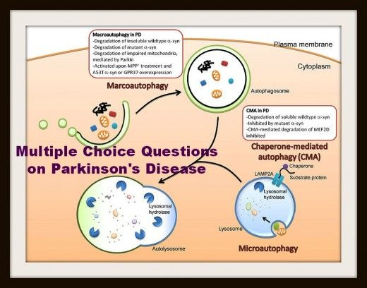 Multiple Choice Questions on Parkinson's Disease