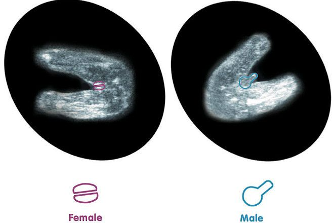 How To Tell Gender From 12 Week Ultrasound Baby Gender Baby Gender Ultrasound Ultrasound Gender