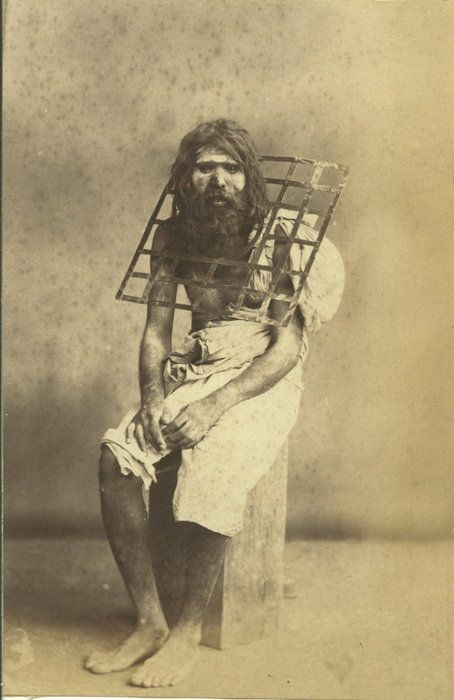 An ascetic with a metal grid welded around his neck so that he can never lie down; late 1800s