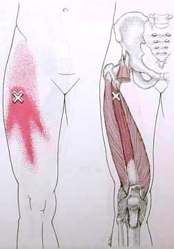 Vestus Intermedius Trigger Point Diagram                                                                                                                                                     Mehr
