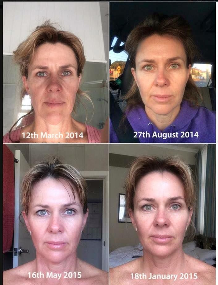 The incredible POWER of these products !! What a difference a year can make !!! Injectables & surgery always come with #risks, #Skincerity will only leave your skin #heathier & #younger.  #loveyourskin #rollerball #skincarecoach  www.mynucerity.biz/tazeem