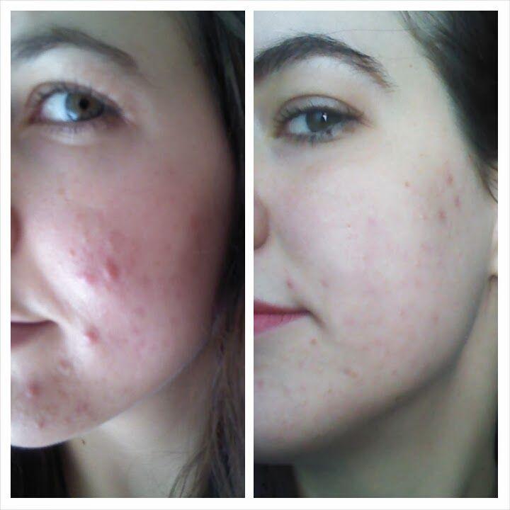 acne adult problem
