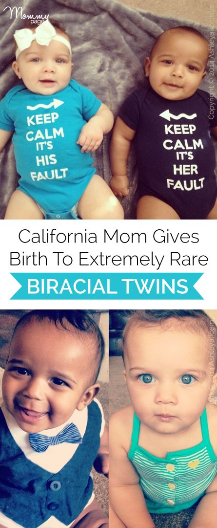 Wow! California mom gives birth to extremely rare biracial twins!