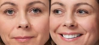 Benefits Of Facial Mole Removal