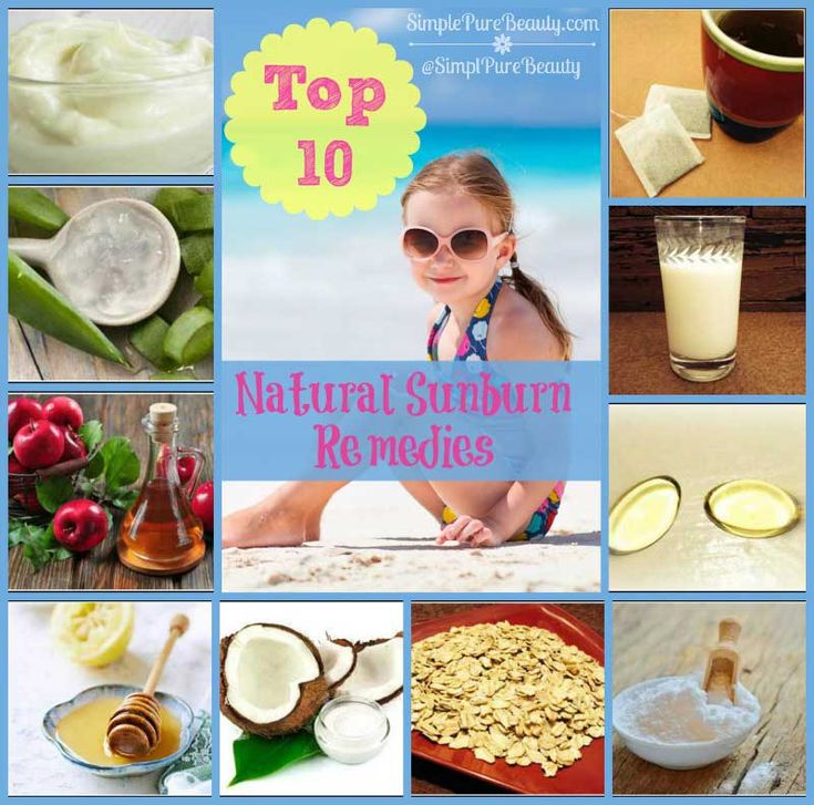 Top 10 Natural Home Remedies for Sunburn Itch and Pain! // DeliciousObsessions.com  #sunburn #remedies