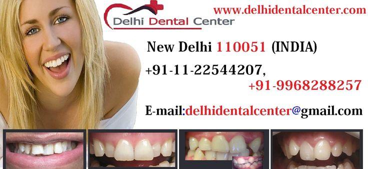 #Lingual #Braces India, Lingual Braces New Delhi, Lingual Orthodontist in Delhi India   http://www.delhidentalcenter.com/invisible-lingual-dental-braces-clinic-delhi-india  Top best lingual braces dentist at #Delhi #Dental #Center in #india specialize in painless invisible customized lingual orthodontic braces treatment, lingual braces clinic india, lingual orthodontist in delhi india.