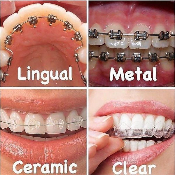 Dentaltown There Are 4 Types Of Braces Lingual Metal Ceramic Clear Lingual Braces Are Placed Behind Your Tee Dental Braces Teeth Braces Lingual Braces