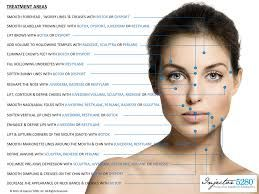Image result for Botox injection points