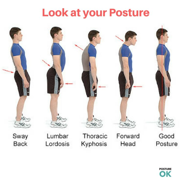 """Do you want to <a href=""""http://postureok.com/"""">fix bad posture</a>? CHIROPRACTIC CARE can help to fix this problem"""