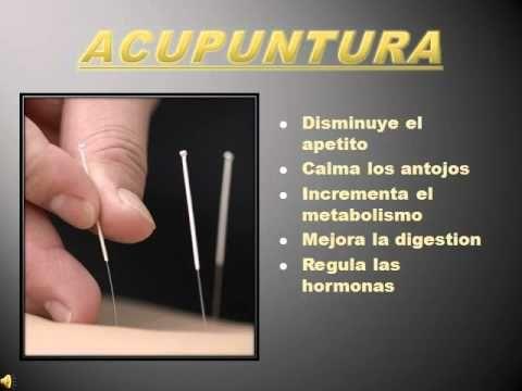 acupuntura para bajar de peso.mp4 - YouTube