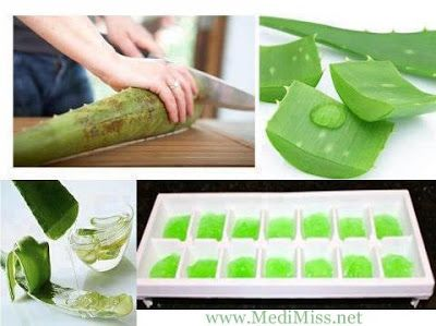 How to freeze Aloe Vera Gel - Aloe is cherished for its wound-healing and pain-relieving effects. First Aid for surface burns.