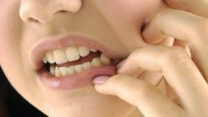 Cara Mengobati Sariawan Dengan Cepat. Sariawan atau stomatitis aftosa adalah suatu penyakit yang terjadi pada selaput lendir atau lapisan mukosa mulut yang berupa luka pada mulut yang berbentuk bercak berwarna putih kekuningan. Munculnya sariawan ini disertai rasa sakit yang tinggi dan terutama ketika sedang makan atau minum.