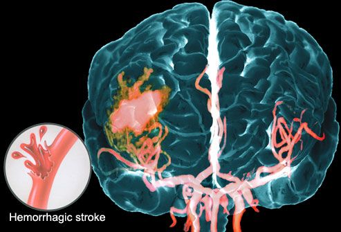 What is a Stroke? A Visual Guide to Understanding Stroke