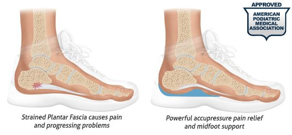 Plantar Fasciitis Heel Cups help alleviate the pressure on the heel, and reduce foot pain and to allow the body to better heal itself.