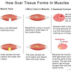 The three ways that muscles can acquire scar tissue. Muscle Tears, Micro-Tears in Muscles and holding muscles tense for long amounts of time.