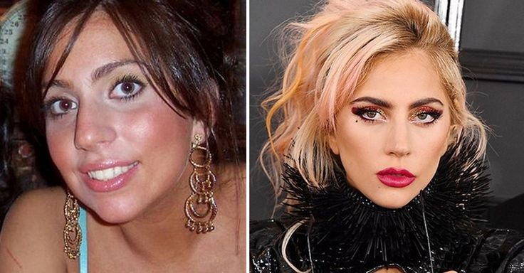 8 Celebrities Who Have Drastically Changed Their Look. Lady Gaga #LadyGaga