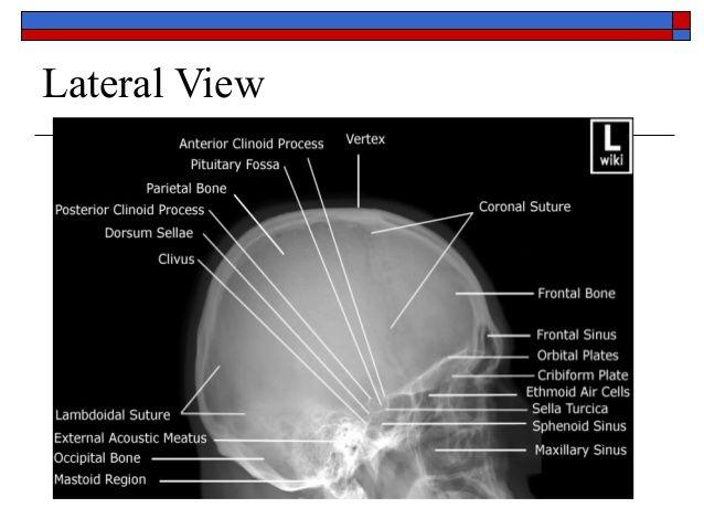 Hasil gambar untuk lateral view of skull x ray