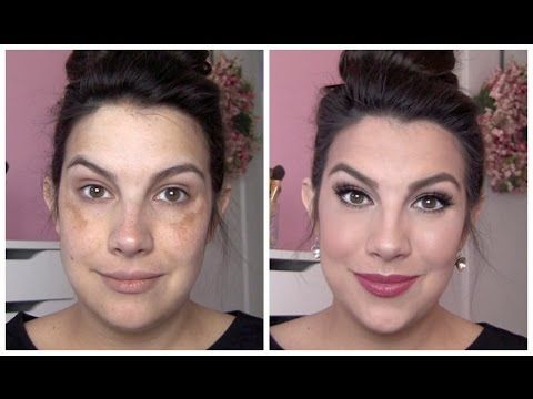 ▶ FULL COVERAGE Makeup for Melasma & Discoloration - YouTube One of my favourite videos. Great tutorial for make up coverage for melasma.  For those days/nights and big events when you want to cover everything up...Estée Lauder Double Wear Maximum Cover Camouflage Makeup gets the thumbs up!
