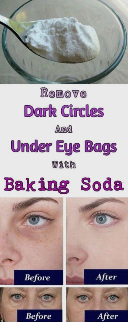 Use baking soda to remove dark circles around eye – Surreal Dream