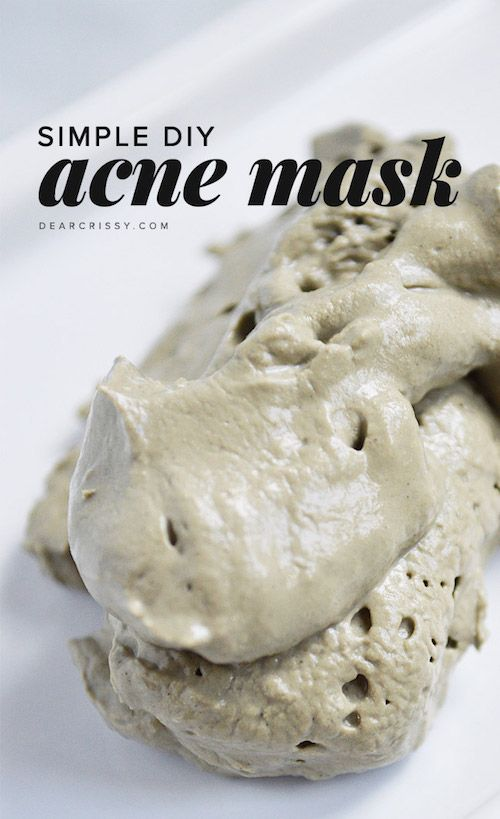 This DIY Acne Face Mask draws out impurities and makes pores look smaller.