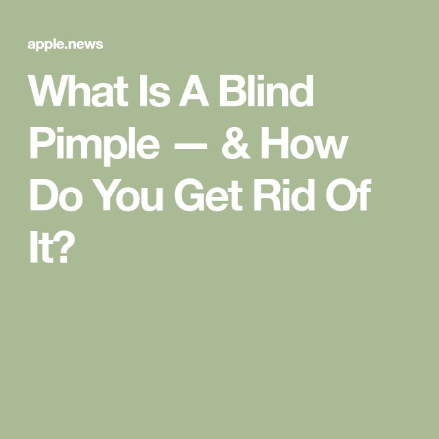 What Is A Blind Pimple — & How Do You Get Rid Of It? — Refinery29