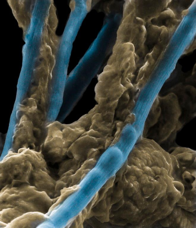 ScienceAlert  The deepest ocean floors are a labyrinth of living electrical cables comprised of bacteria. Previously undescribed, the Desulfobulbaceae bacteria are able to transmit electricity across vast distances – creating a new frontier for the study of biological chemistry.
