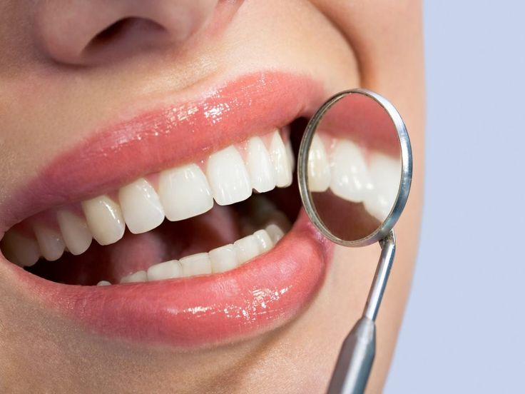 Facts on Opalescence Teeth Whitening System