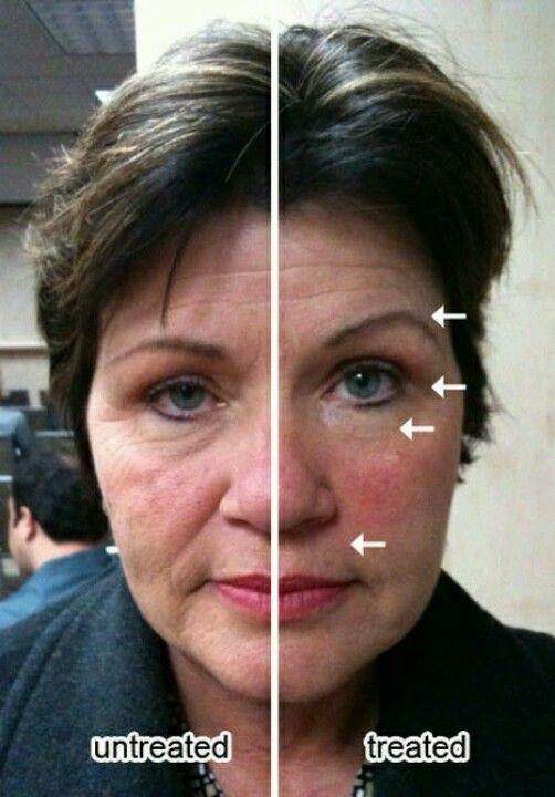 Resultado Galvanic Spa Facial con geles faciales ageLOC
