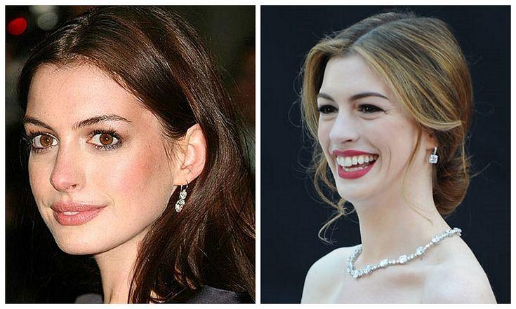 Celebrity a farby - Tmavý typ a blond farba vlasov - Anne Hathaway