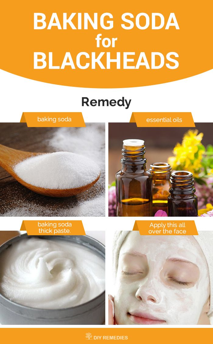 Method – 3: Baking Soda Facial Scrub  Scrubbing is the best way to remove and prevent blackheads. Let's get started to know how to do this scrubbing process.