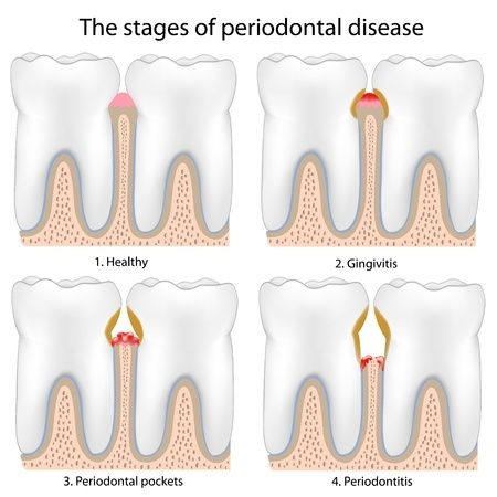 Periodontal Disease Healthy Teeth plus