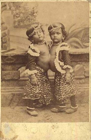 Radica and Doodica, conjoined twins