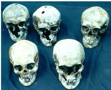 Romanov skulls