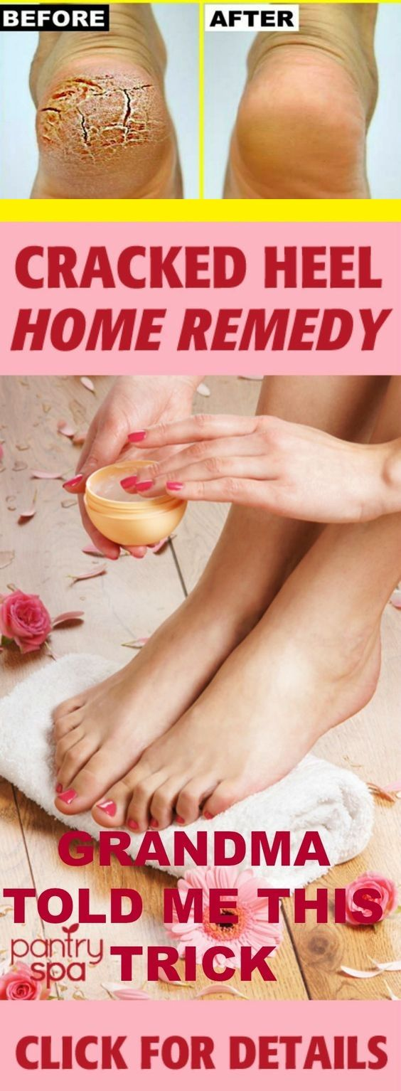 Cracked heels treatment | Grandma told me this trick | I healed my cracked heels in just one night