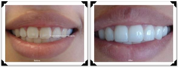 Patient came to see Dr. Kathrina Agatep regarding dental fluorosis on her front teeth, which is exhibited as the white spots shown in the photo.  Dr. Agatep designed her smile and placed veneers to cover up the imperfections and produce a natural looking smile.