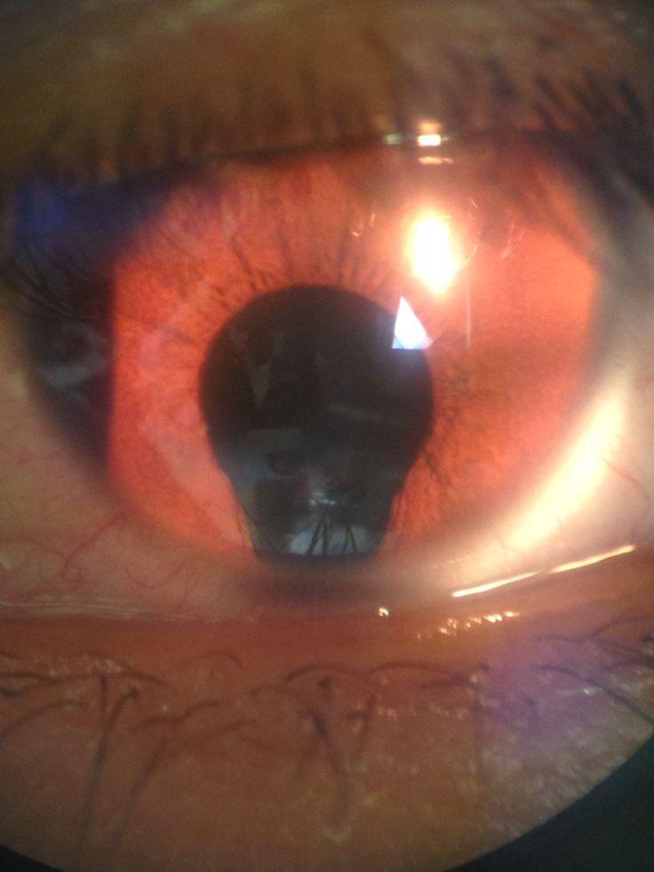 Coloboma de Iris