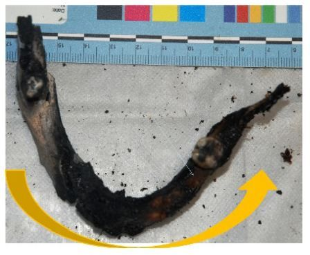 Figure 7 Upper view of the lower jaw with color alteration of bone caused by the fire.