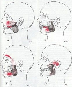 TMJ trigger points- went to the doctors because of an ear ache, came back home with a TMJ diagnosis.