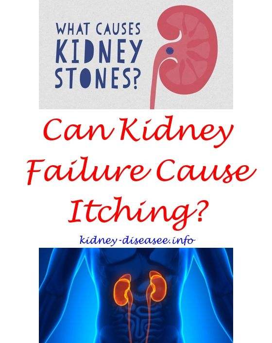 Best 25 Kidney Stones Funny Ideas On Pinterest Kidney