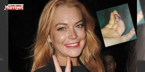 Parmağının kopan parçası böyle dikildi : Türkiyede bulunduğu sırada parmağının bir parçası kopan ünlü oyuncu Lindsay Lohanın geçirdiği operasyonun ayrıntıları ortaya çıktı. Bodrumda çıktığı bir tekne gezisi sırasında sol elinin yüzük parmağının bir bölümü kesilen Lohan hemen hastaneye kaldırıldı ve ameliyata alındı. 30 yaşındaki Lohanın parmağının kopan kısmı bir operasyonla dikildi.  http://ift.tt/2dMzaaG #Magazin   #parmağı #Lohan #kopan #dikildi #parçası
