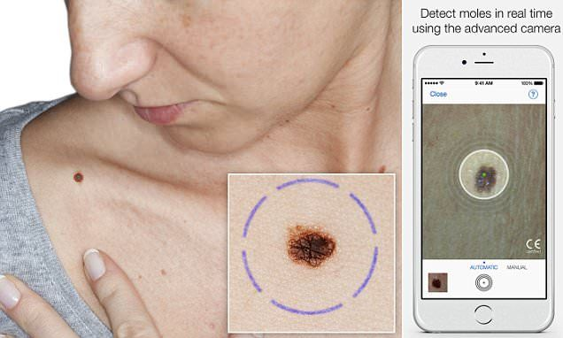 Can your selfie diagnose skin cancer? New phone app analyses photos of moles and freckles and gives a 'risk rating' for melanoma   SkinVision uses photos to assess moles and freckles on a person's skin   The app then analyses the mole and provides a 'risk rating' [The Future of Medicine: http://futruisticnews.com/tag/future-medicine/]