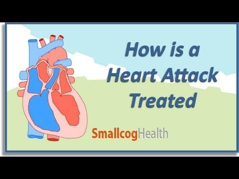 a report on heart attack and its causes The link between heart attacks and smoking was noted in the first surgeon general's report in 1964 later reports revealed a much stronger connection heart disease research scientists found that smoking is a major cause of diseases of blood vessels inside and outside the heart.