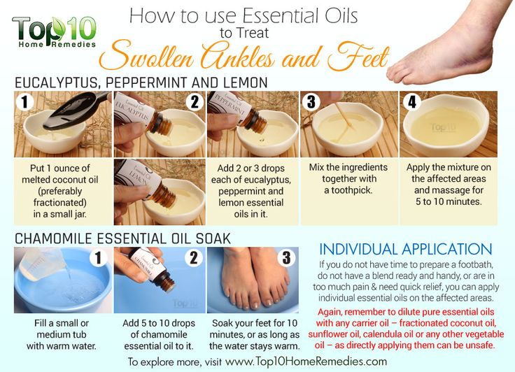 essential oils for swollen feet