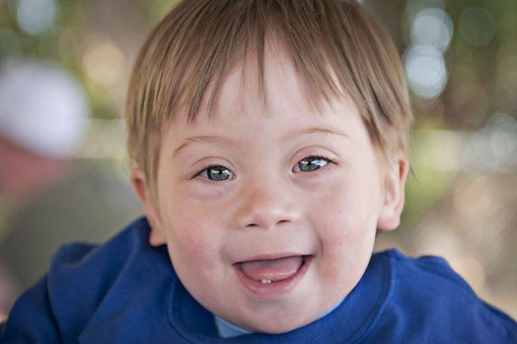 Signos y síntomas del síndrome de Down   La mayoría de las personas con síndrome de Down tienen retraso mental que puede ser leve o moderado, lo cual, los síntomas del síndrome de Down pueden ir de leves a severos.